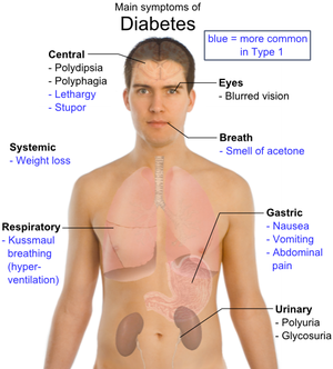 diabetes mellitus type 1 essay
